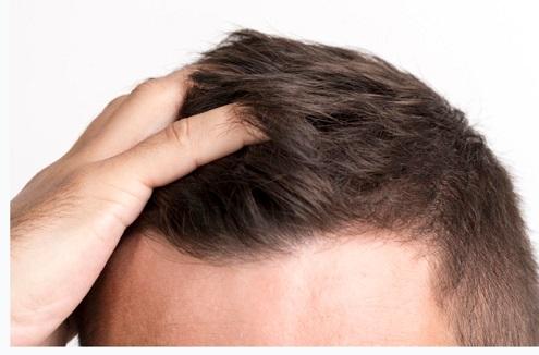 סוגי טיפולים להשתלת שיער